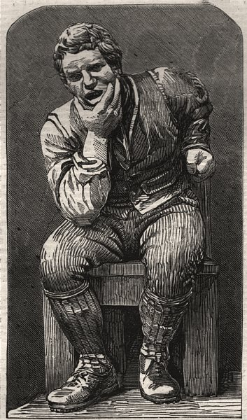 "Associate Product The Burns Centenary. ""Toothache"". Scotland, antique print, 1859"