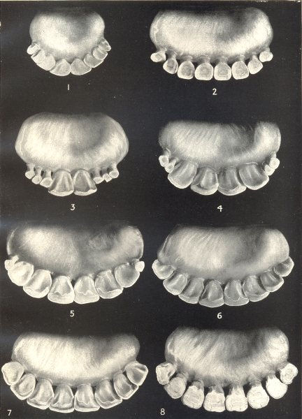 Associate Product AGE OF OXEN. Dentition. Incisors at various ages 1912 old antique print