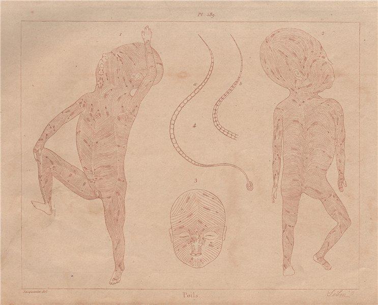 Associate Product HUMAN HAIR GROWTH. Poils. Hair whorls. Follicle direction 1833 old print